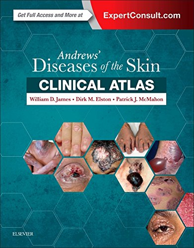 Andrews' Diseases of the Skin Clinical Atlas, 1e