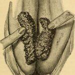 Prevent Skin Diseases With Antibacterial Soaps