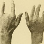 Olive Gold And The Main Diseases It Deals With