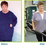 Sustaining Weight Loss