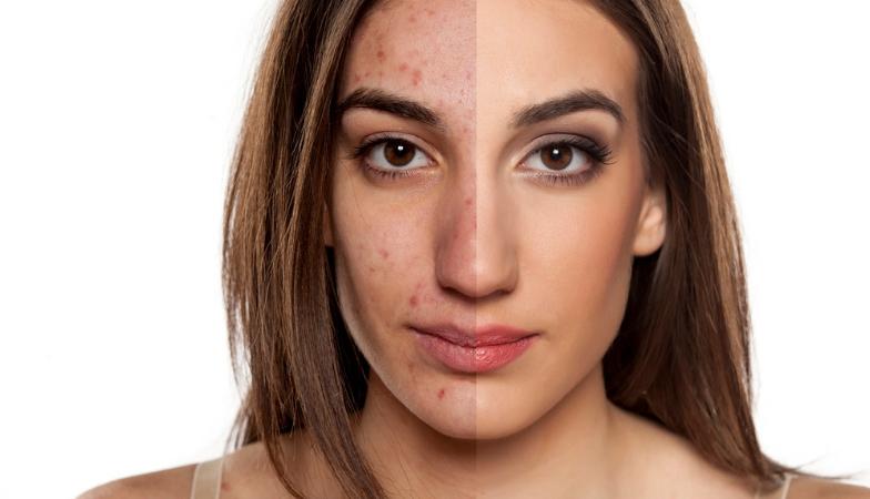 7 visual body signs acne Rick Hay Healthista