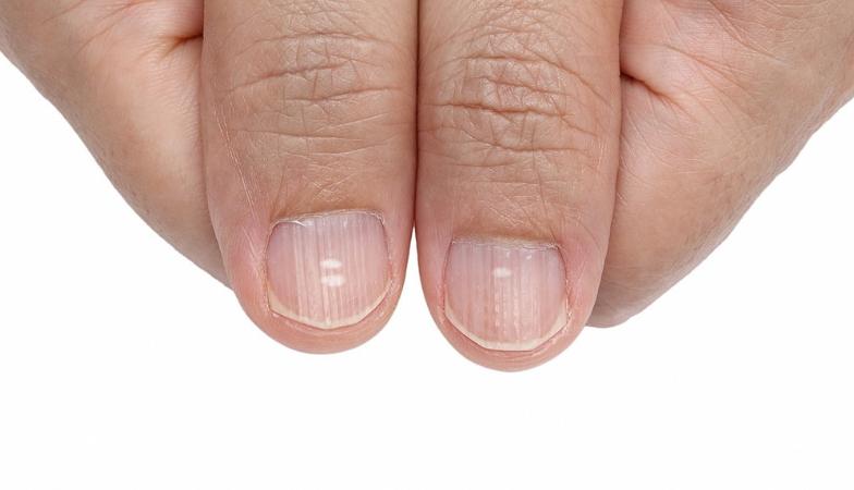 7 visual body signs nail ridges Rick Hay Healthista