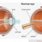 Learning the Basics of Astigmatism, Symptoms and It's Treatment