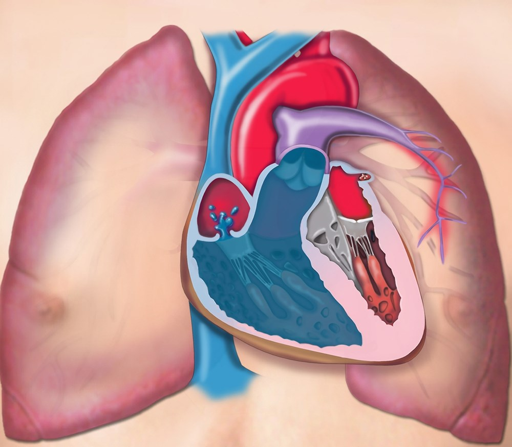 PAH is an under-diagnosed complication of adult-onset Still disease.
