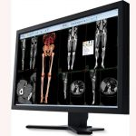 Carestream Health to sell imaging IT line to Philips