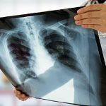 First Mesothelioma Treatment in 15 Years Approved